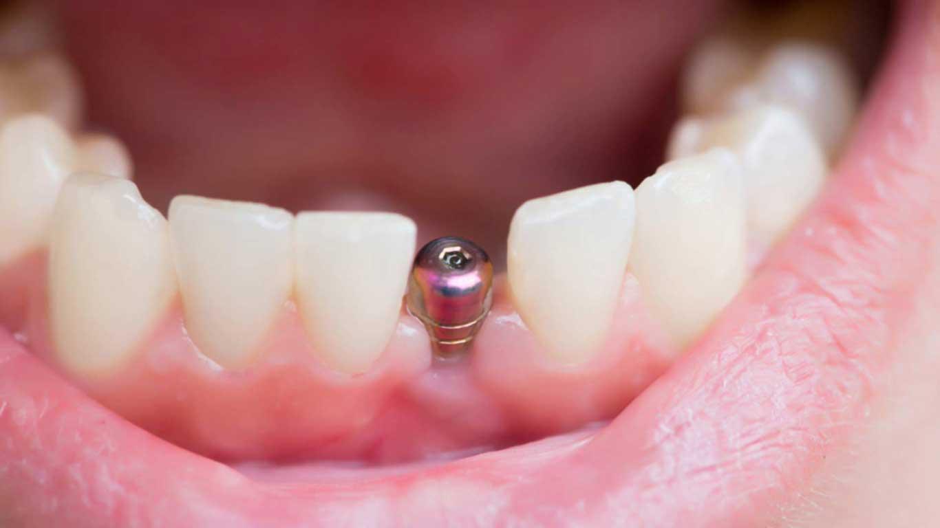 زراعة الأسنان - عيادة أسنان أوبتمم كير - د. هبة عمار - استشاري تجميل الاسنان و التركيبات