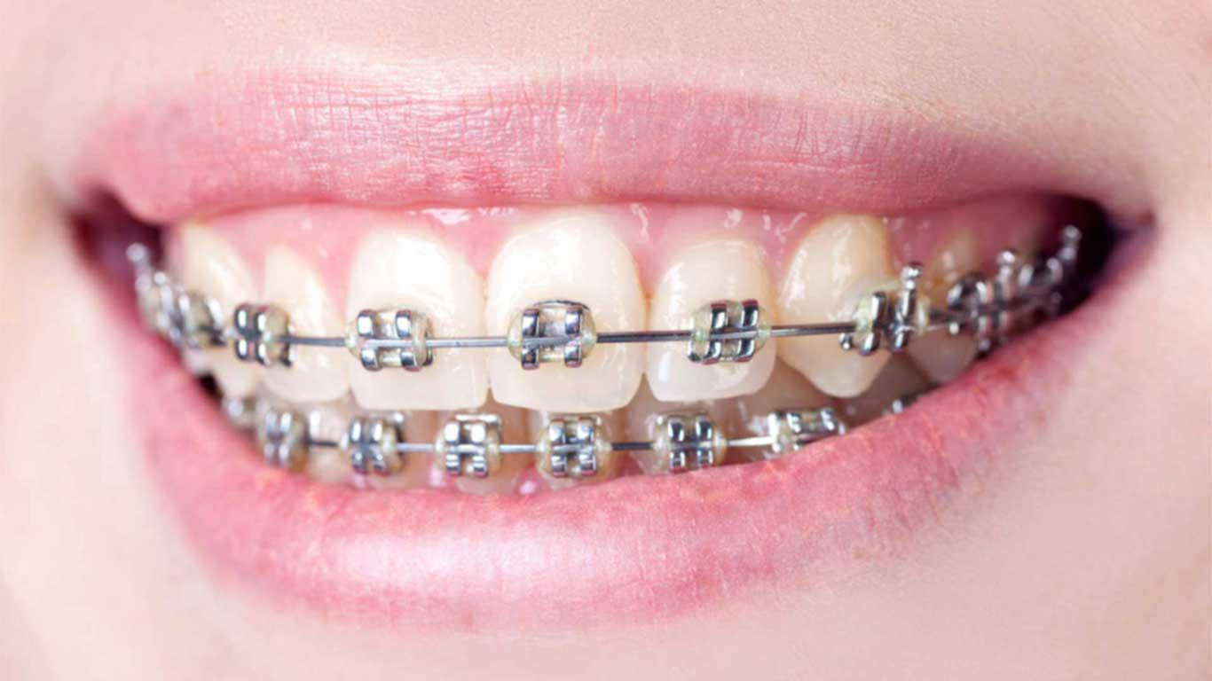 تقويم الأسنان - عيادة أسنان أوبتمم كير - د. هبة عمار - استشاري تجميل الاسنان و التركيبات