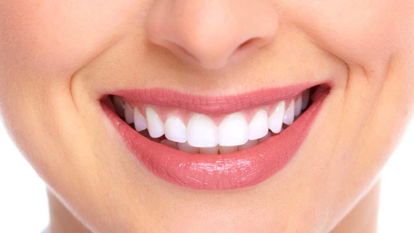 تجميل الإبتسامة - عيادة أسنان أوبتمم كير - د. هبة عمار - استشاري تجميل الاسنان و التركيبات