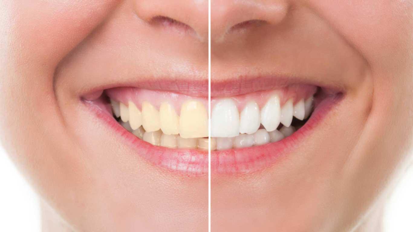 تبييض الأسنان - عيادة أسنان أوبتمم كير - د. هبة عمار - استشاري تجميل الاسنان و التركيبات