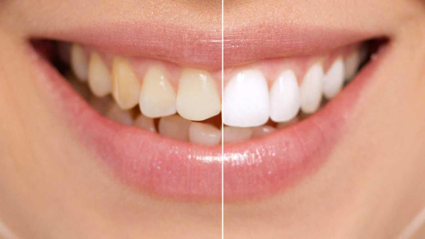 الفينيرز - عيادة أسنان أوبتمم كير - د. هبة عمار - استشاري تجميل الاسنان و التركيبات