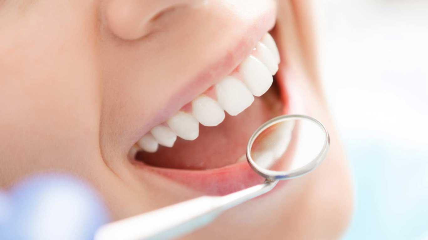 تنظيف الأسنان - عيادة أسنان أوبتمم كير - د. هبة عمار - استشاري تجميل الاسنان و التركيبات