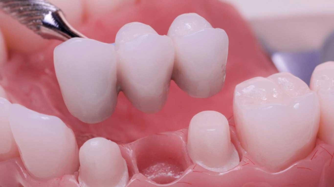 تاج الأسنان - عيادة أسنان أوبتمم كير - د. هبة عمار - استشاري تجميل الاسنان و التركيبات