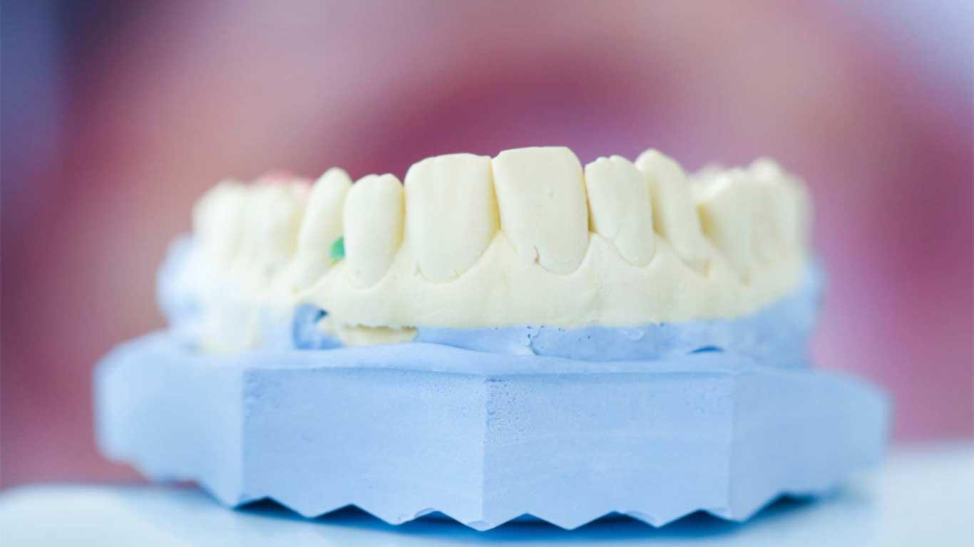 Dental Services - Dental Implants - Clear Aligners - Veneers - Teeth Whitening