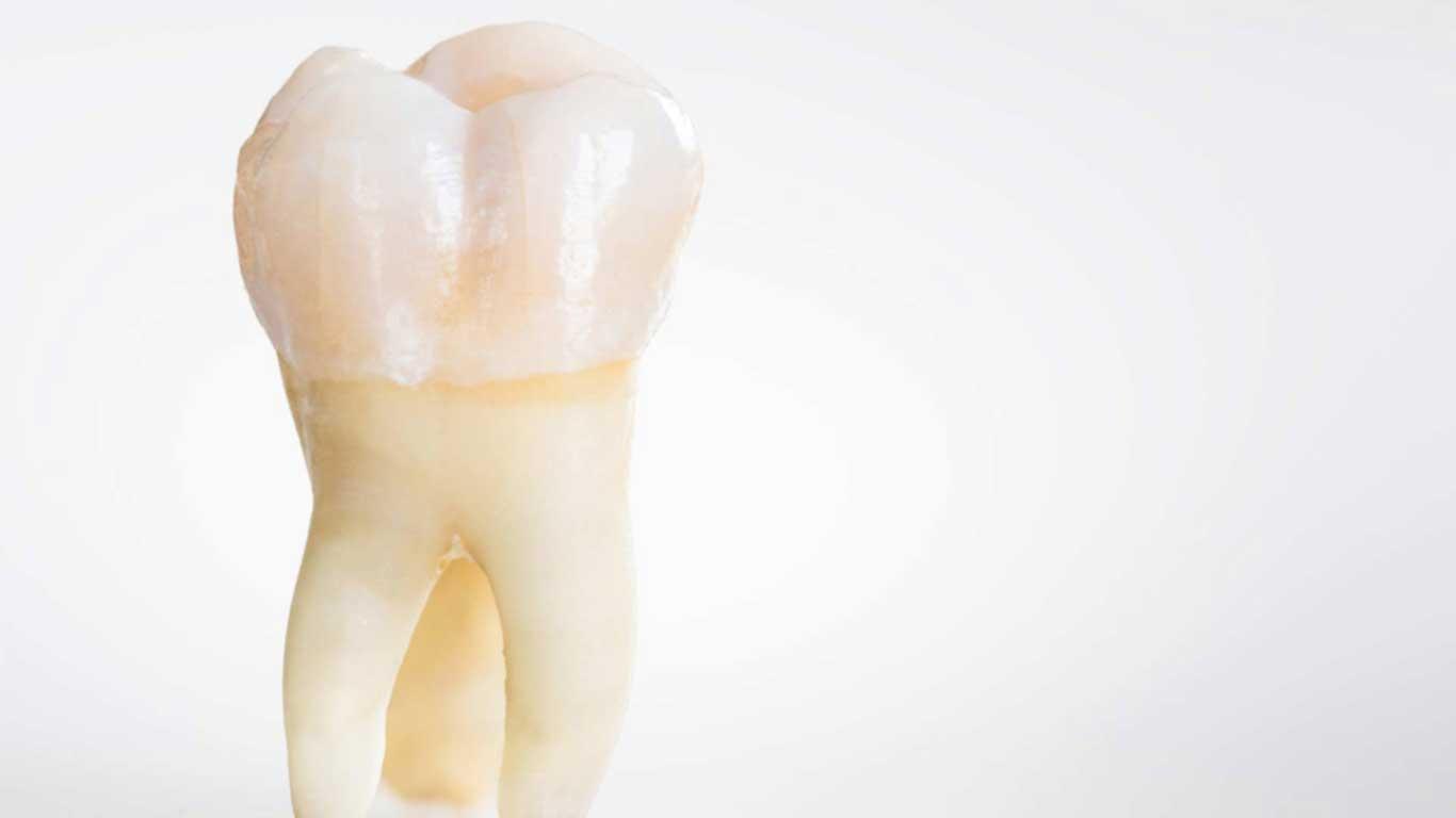 خلع الأسنان - عيادة أسنان أوبتمم كير - د. هبة عمار - استشاري تجميل الاسنان و التركيبات